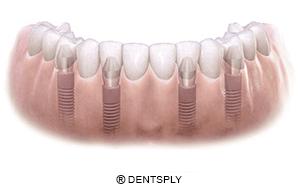 especialistas en implantes dentales en Barcelona
