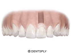 implante molar en mandíbula superior
