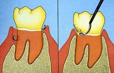 Raspado dental y alisado radicular